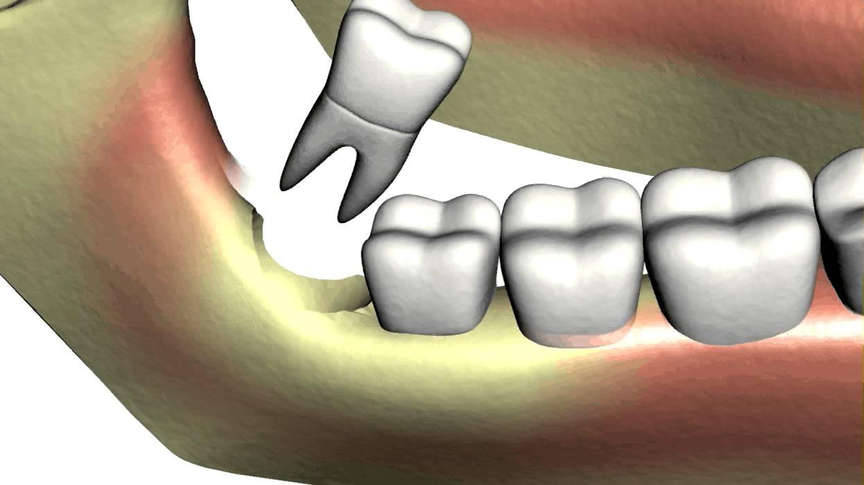 les dents de sagesse implantcenter clinique budapest implants dentaires en hongrie. Black Bedroom Furniture Sets. Home Design Ideas