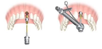 Pose de l'implant dentaire - Implantcenter